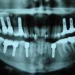 10-implantów-u-jednego-pacjenta-1