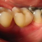 Korona porcelanowa zacementowana na implancie-  nie do odróżnienia od własnego zęba. Proszę zauważyć, że pacjent otrzymał nowego zęba, bez jakiejkolwiek ingerencji w pozostałe jego własne uzębienie.  Nie szlifowano zębów sąsiednich pod most itp. inne konstrukcje protetyczne. Ząb na implancie jest pracą stałą, niewyjmowalną z ust, a rola pacjenta sprowadza się tylko do dbania o dobrą higienę.
