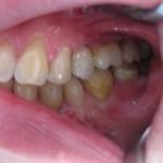 Mosty-na-implantach-7