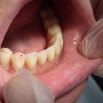Proteza-całkowita-na-belce-2-implanty-dol-3