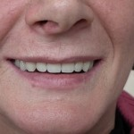 Proteza-całkowita-na-belce-4-implanty-góra-4