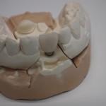 Korona porcelanowa na modelu